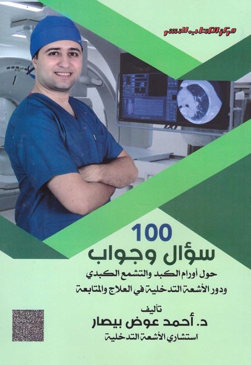 """100 سؤال وجواب """" حول أورام الكبد والتشمع الكبدى ودور الأشعة التدخلية في العلاج والمتابعة """""""